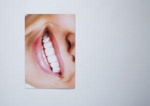 White Smile™-13