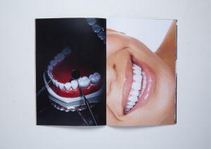 White Smile™-8